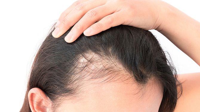 alopecic.com